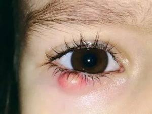 Халязион прорвался, что делать – эффективная очистка от гноя