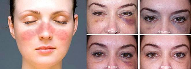 Биоревитализация вокруг глаз: отзывы, как убрать отечность, фото до и после