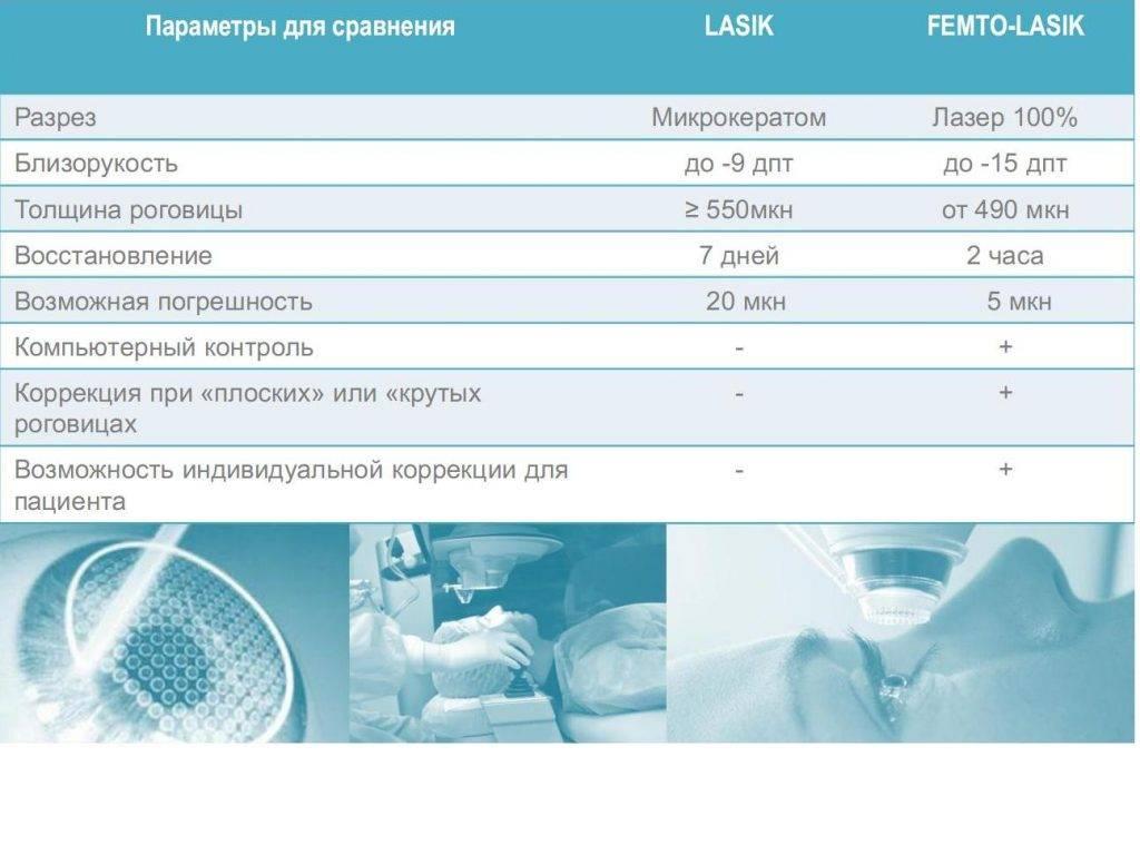 Методы лазерной коррекции зрения: фемто ласик