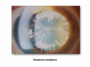 Что такое осложненная катаракта глаз: чем опасна и как ее лечить