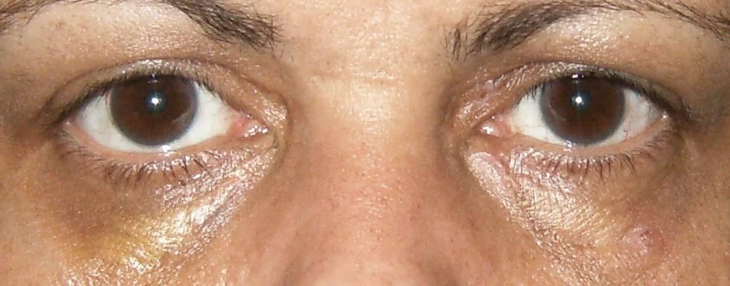 Под глазами желтые пятна. причины желтых пятен под глазами