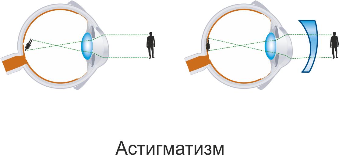 Линзы для астигматизма: как подобрать для коррекции, можно ли носить, производители, цены