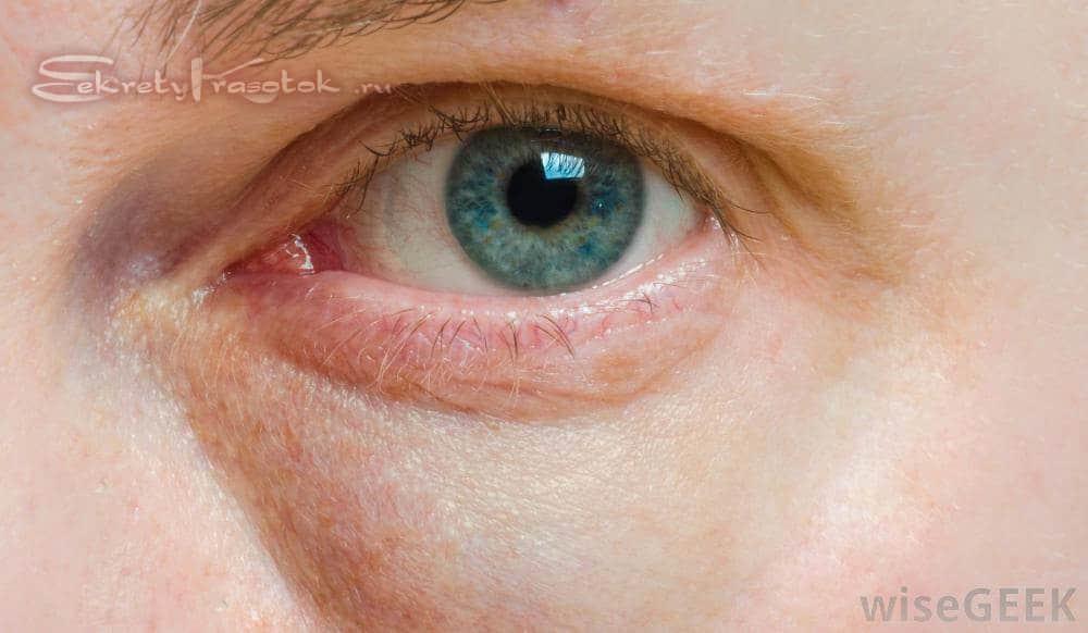 Отечность век над глазами: причины, симптомы, лечение и профилактика - sammedic.ru