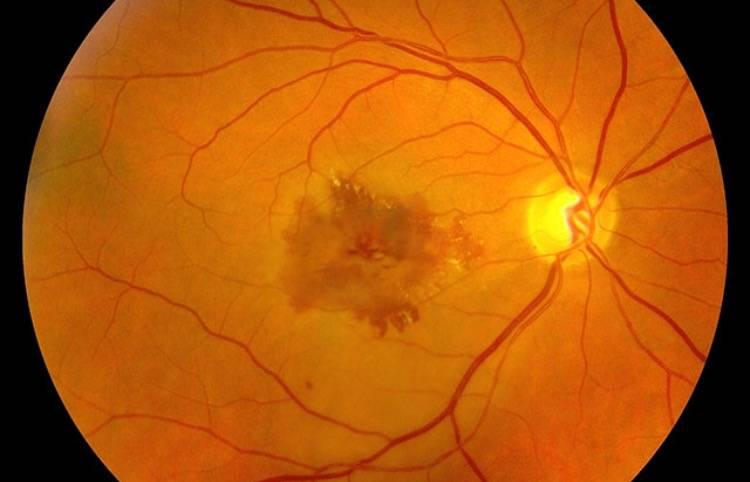 Макулярный отек сетчатки глаза - диагностика, причины, лечение