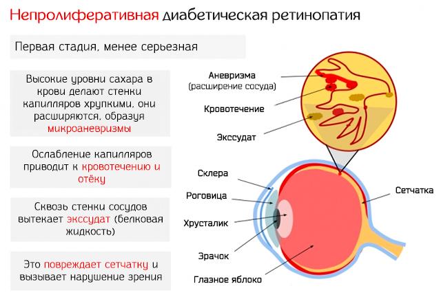 Фоновая ретинопатия и ретинальные сосудистые изменения: причина развития, симптомы методы лечения