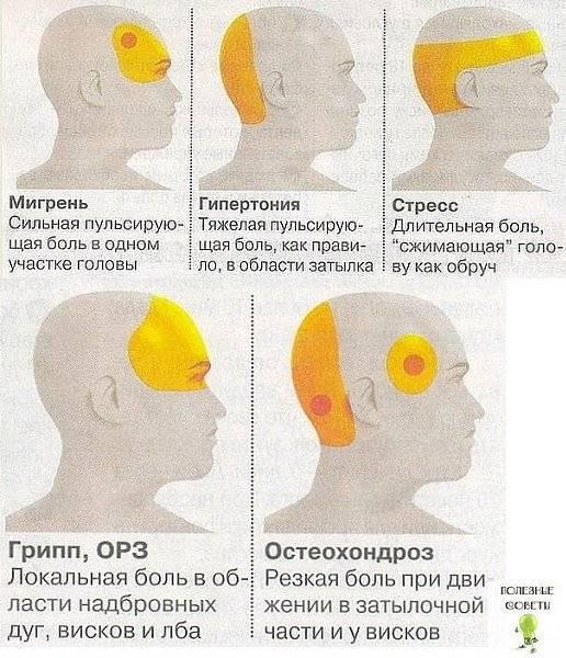 Больно поднимать глаза вверх и болит голова: причины, лечение, профилактика симптома