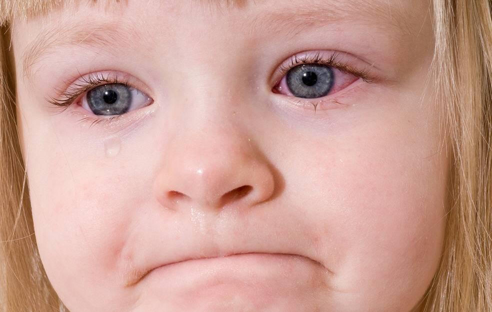 У ребенка под глазами красные круги, что это значит