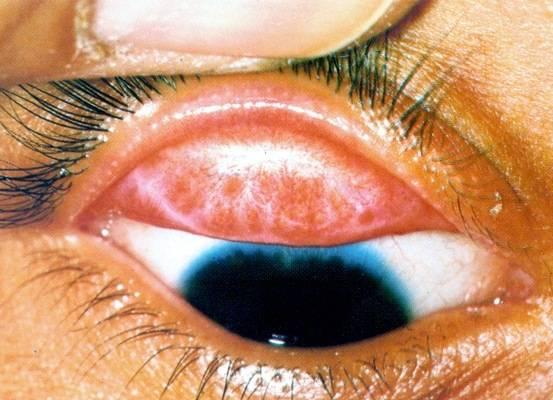 Хламидийный конъюнктивит - лечение болезни. симптомы и профилактика заболевания хламидийный конъюнктивит