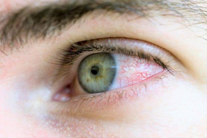 Как убрать красноту глаз, способы быстро избавиться от покраснения
