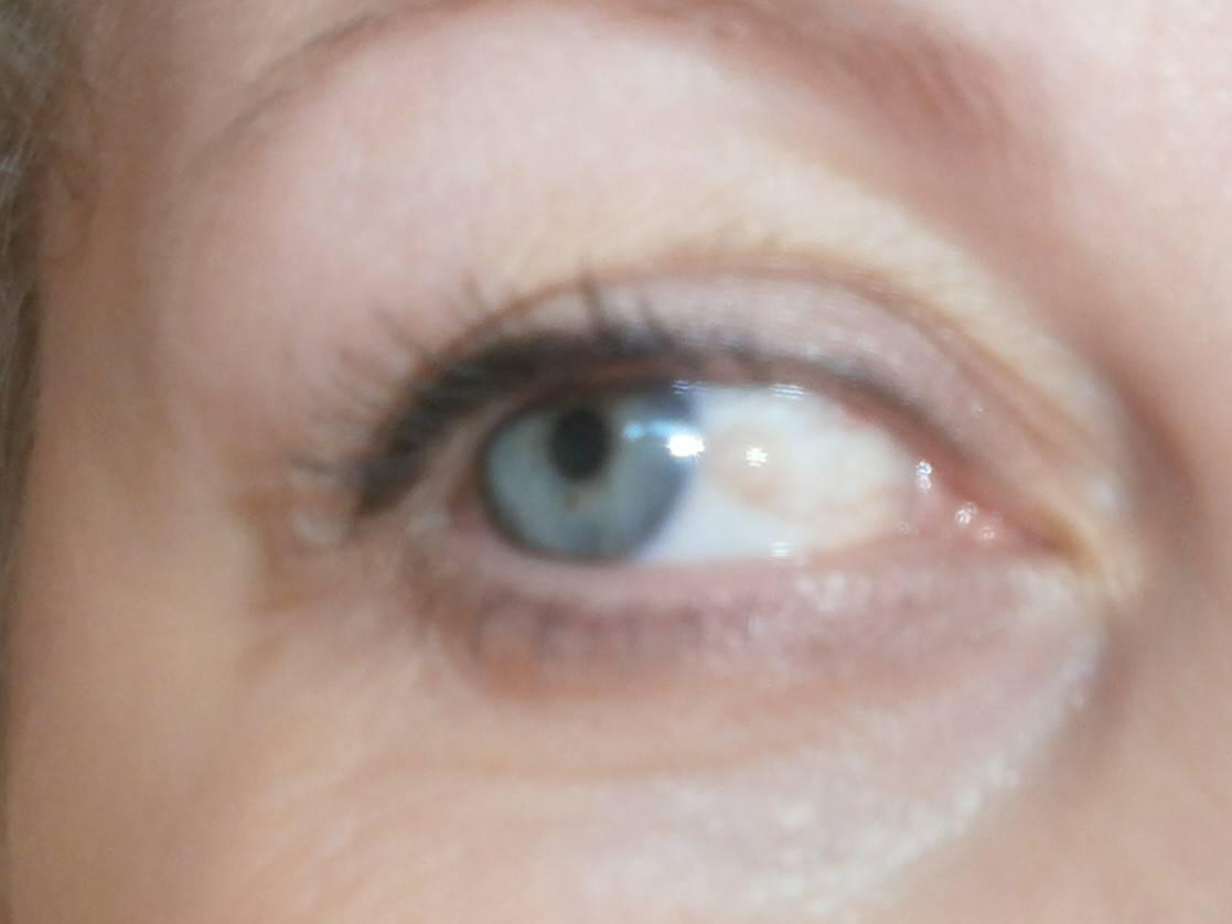 Пузырек на белке глаза у ребенка - вопрос офтальмологу