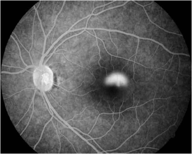 Центральная серозная хориоретинопатия – симптомы и лечение