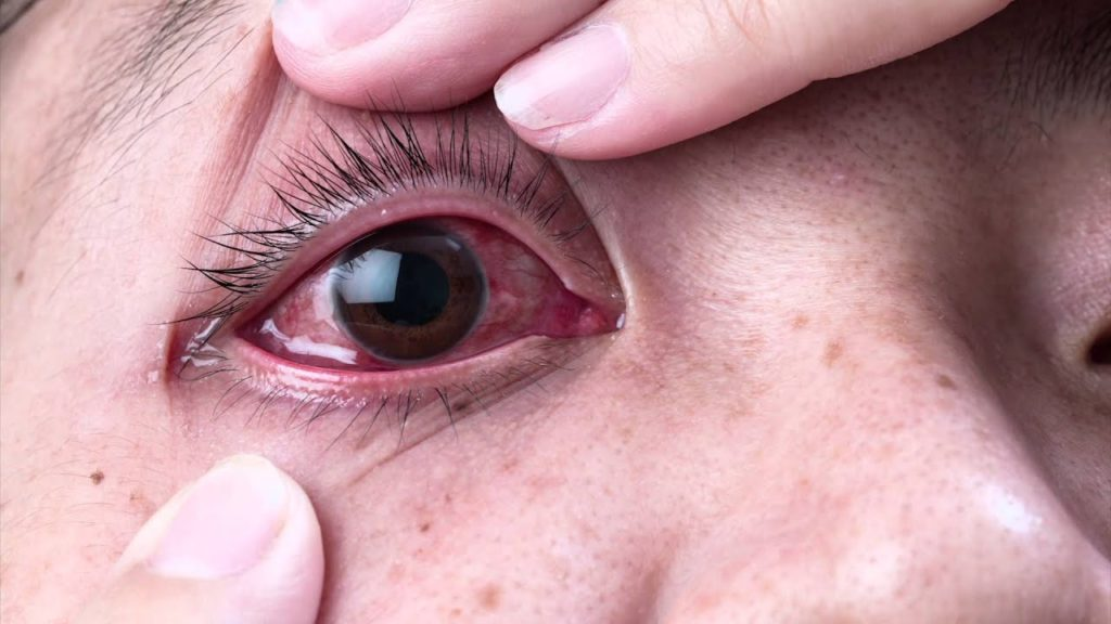 В глазу как будто что-то мешает: дискомфорт в глазах, чувство инородного тела, ощущение соринки под веком