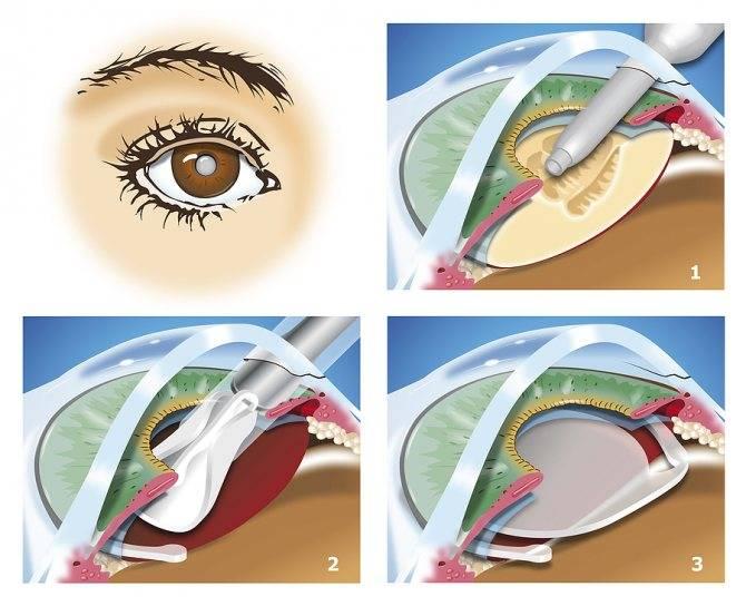 Имплантируем искусственный хрусталик (вам это понадобится лет после 60)