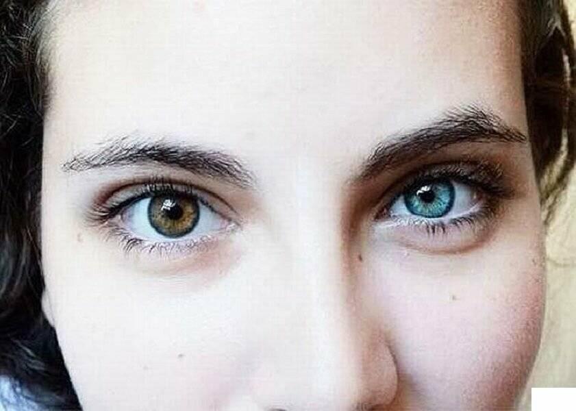 Гетерохромия или разный цвет глаз у людей: виды, причины, фото