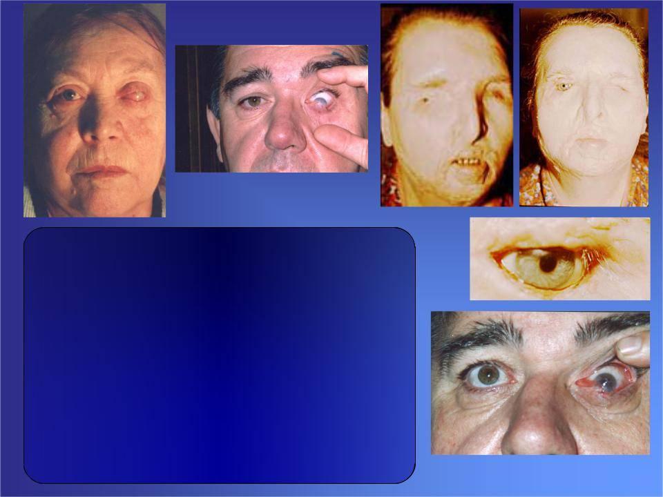 Эндофтальмит — что это, причины, лечение, последствия
