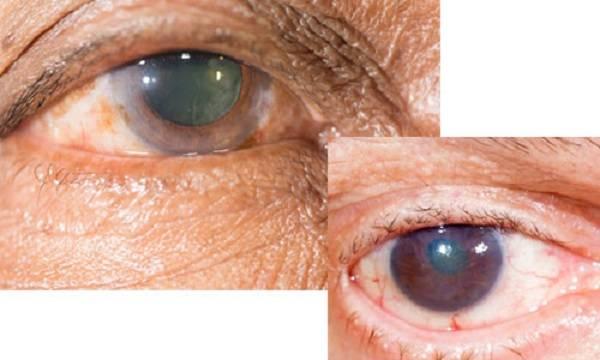 Мутный глаз у человека, зрачок и хрусталик – почему