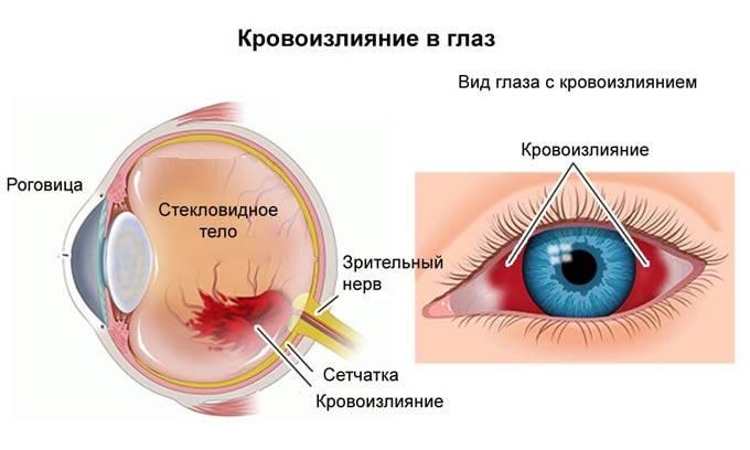 Кровоизлияние в стекловидное тело глаза – причины, симптомы и лечение