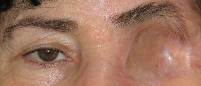Энуклеация глазного яблока: показания, методы проведения