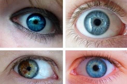 Можно ли поменять цвет глаз: способы и рекомендации