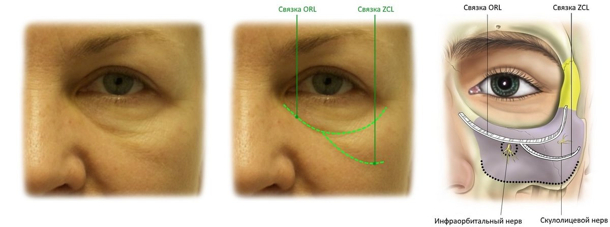 Малярные мешки под глазами: причины и лечение у женщин, как избавиться в домашних условиях