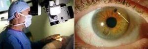 Эвисцерация - удаление содержимого глаза - как проводится