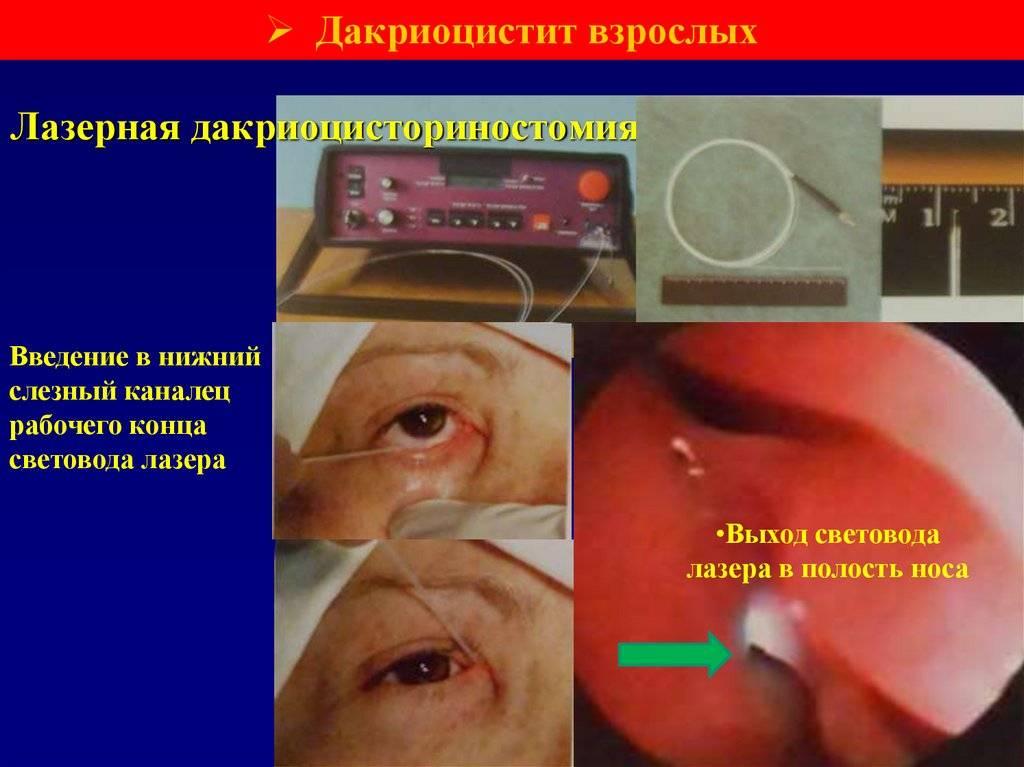 Что это за процедура — дакриоцисториностомия, какой метод операции эффективней?