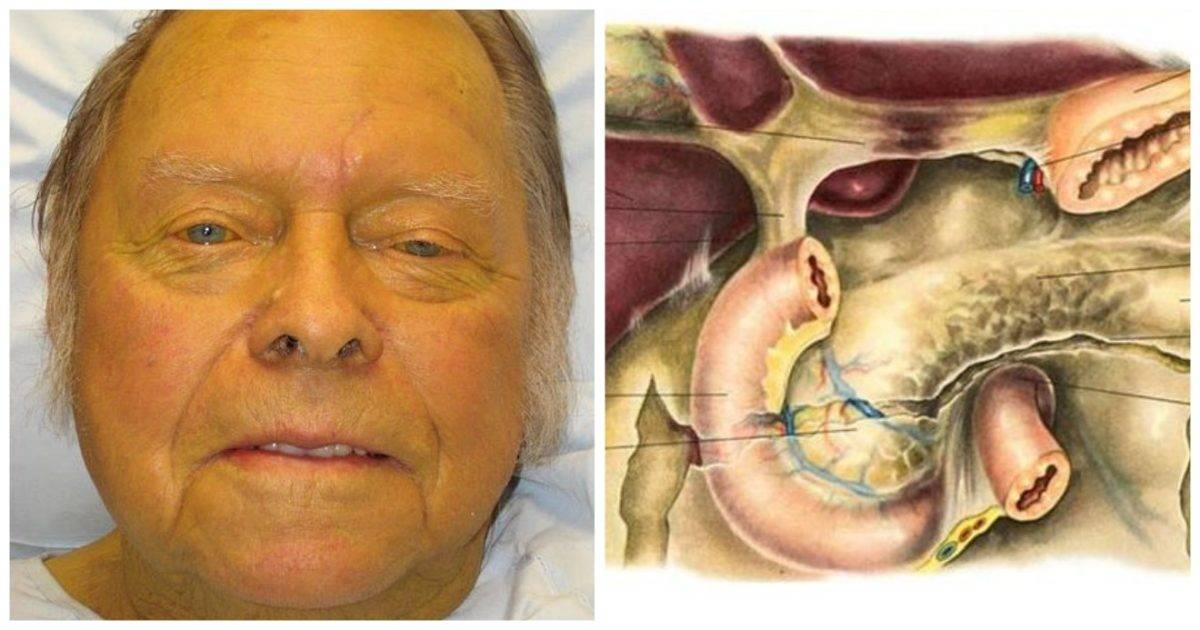 Мадароз: причины появления и методы лечения