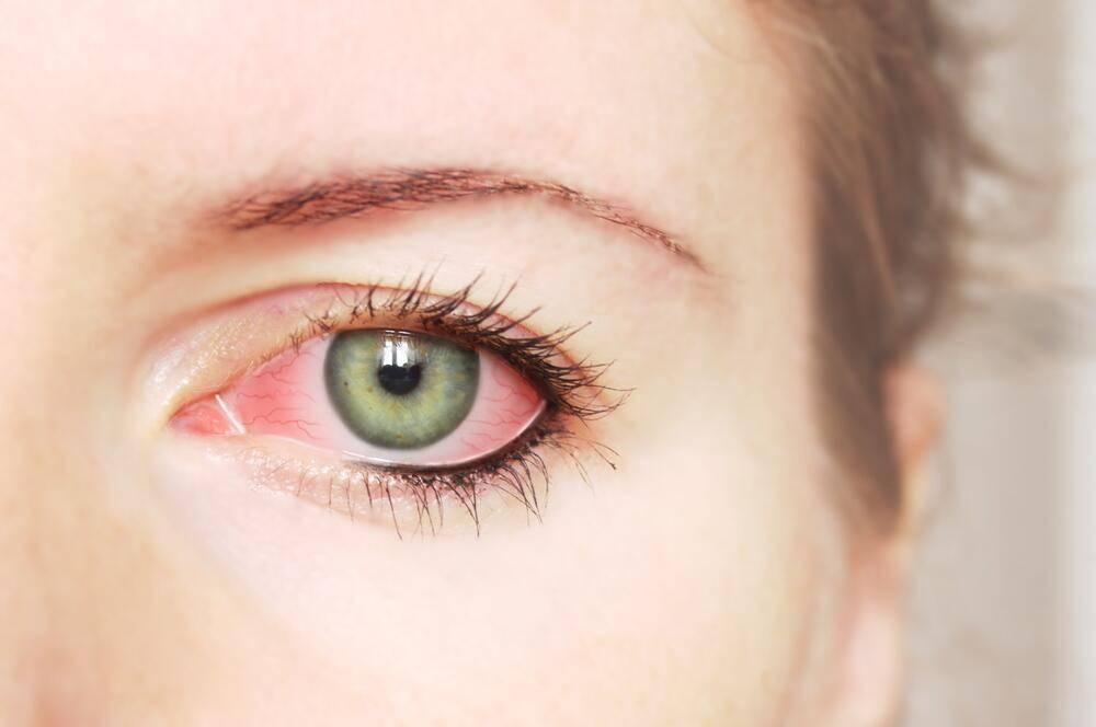 Почему от тонального крема слезятся глаза