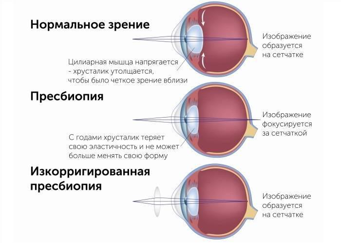 10 признаков, что у вас проблемы со зрением и вам нужны очки