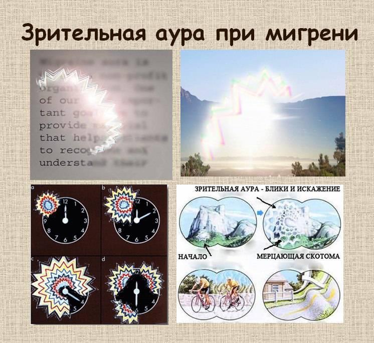 Глазная мигрень мерцательная скотома что это причины и лечение - мед портал tvoiamedkarta.ru