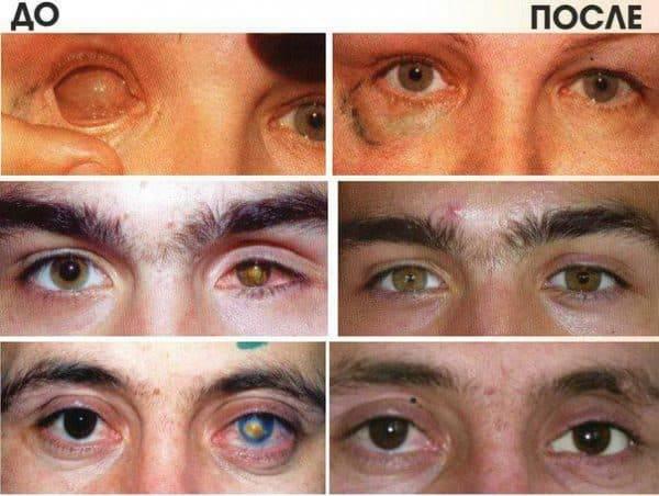 Эвисцерация глазного яблока: ход процедуры, плюсы и минусы