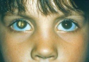 """Темнеет в глазах: возможные причины, диагностика, лечение - """"здоровое око"""""""