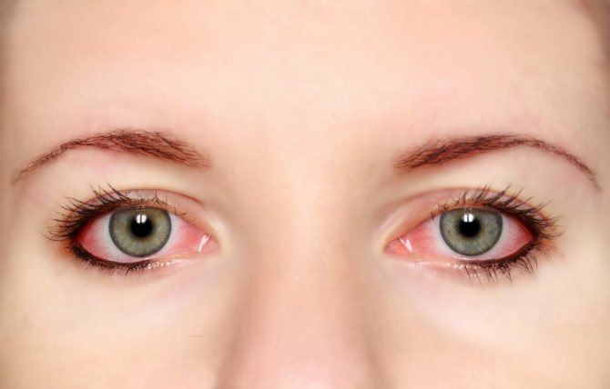 Как сделать красные глаза в домашних условиях — красивое лицо