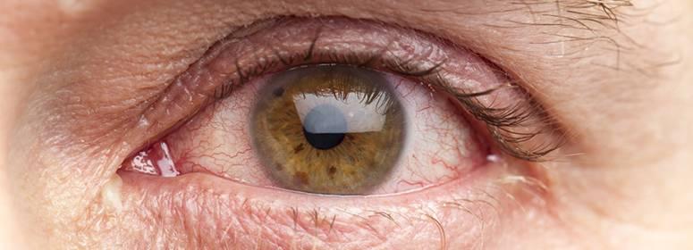 Грибок в глазах у человека