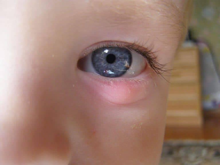 Конъюнктивит у ребенка 3 года - чем лечить и сколько