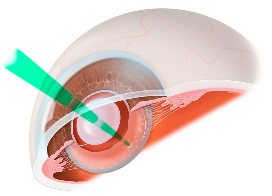 Удаление катаракты лазером или ультразвуком — что лучше