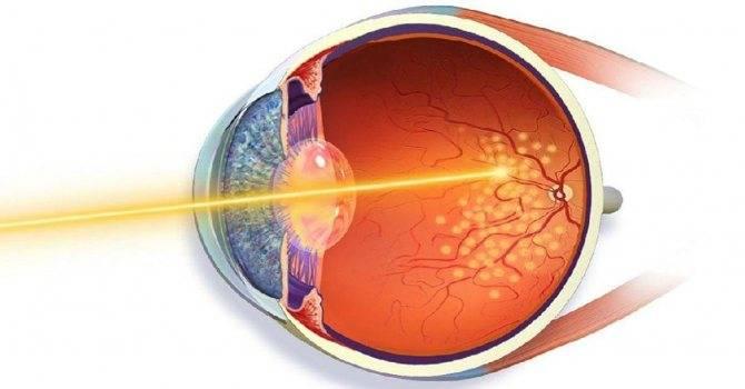 Миопия высокой степени: что это такое, лечение обоих глаз у взрослых, чем опасна прогрессирующая, освобождение при физкультуре при легкой
