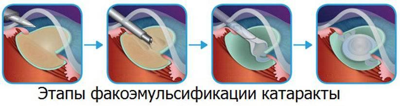 Факоэмульсификация катаракты: что это такое, как лечат лазером и ультразвуком, операция с имплантацией иол