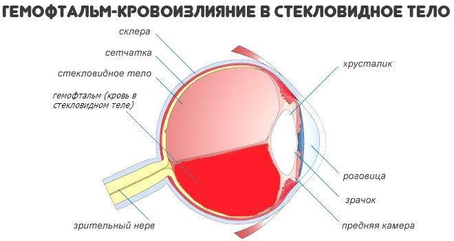 Причины и лечение гемофтальма глаза