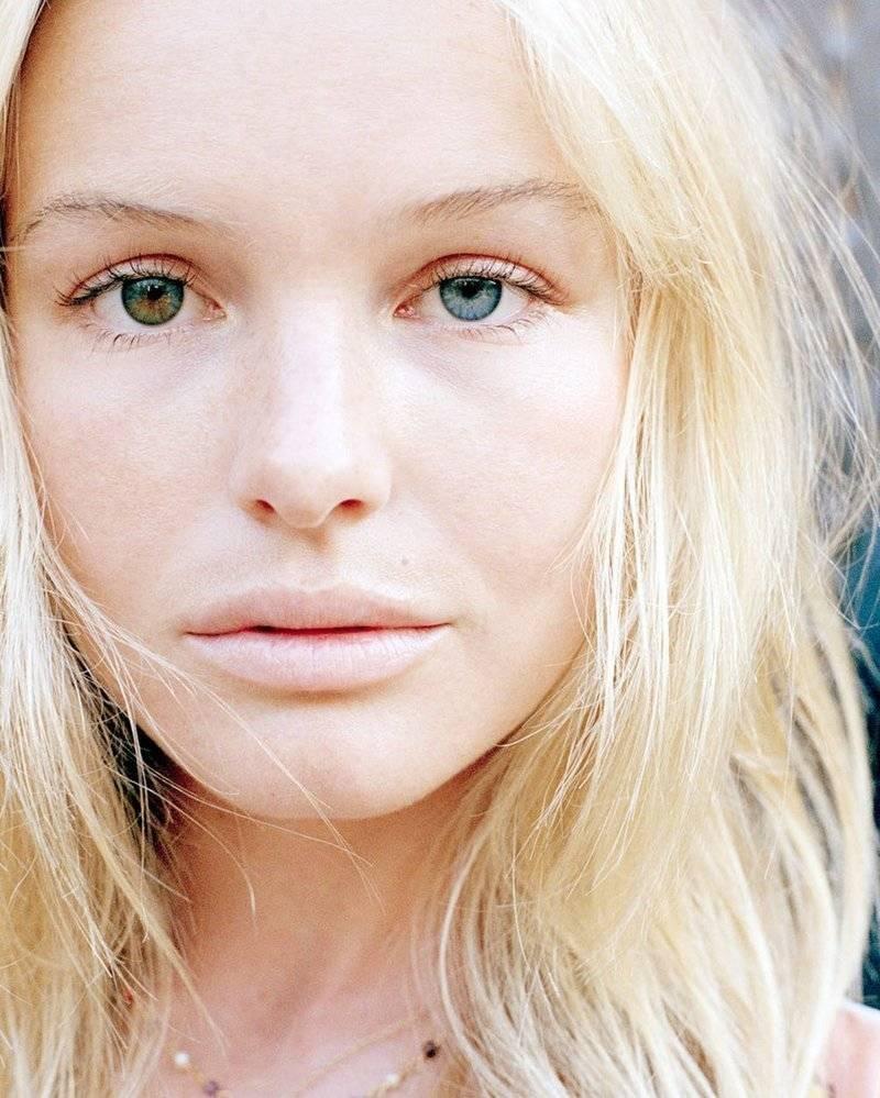 Что такое гетерохромия и и что могут сказать о человеке глаза разного цвета