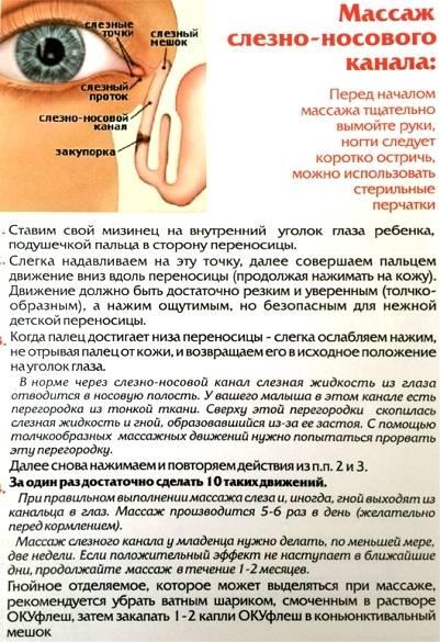 Причины и лечение воспаления слёзного мешочка