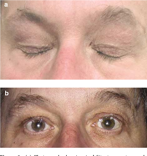 Блефароспазм: причины, симптомы, лечение