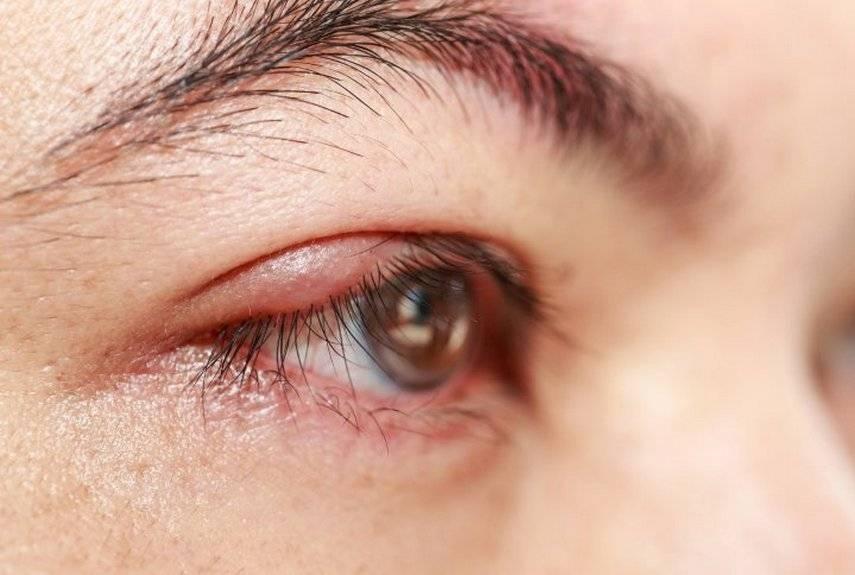 Глаз красный и гноится: почему так происходит и чем лечить симптом у взрослого