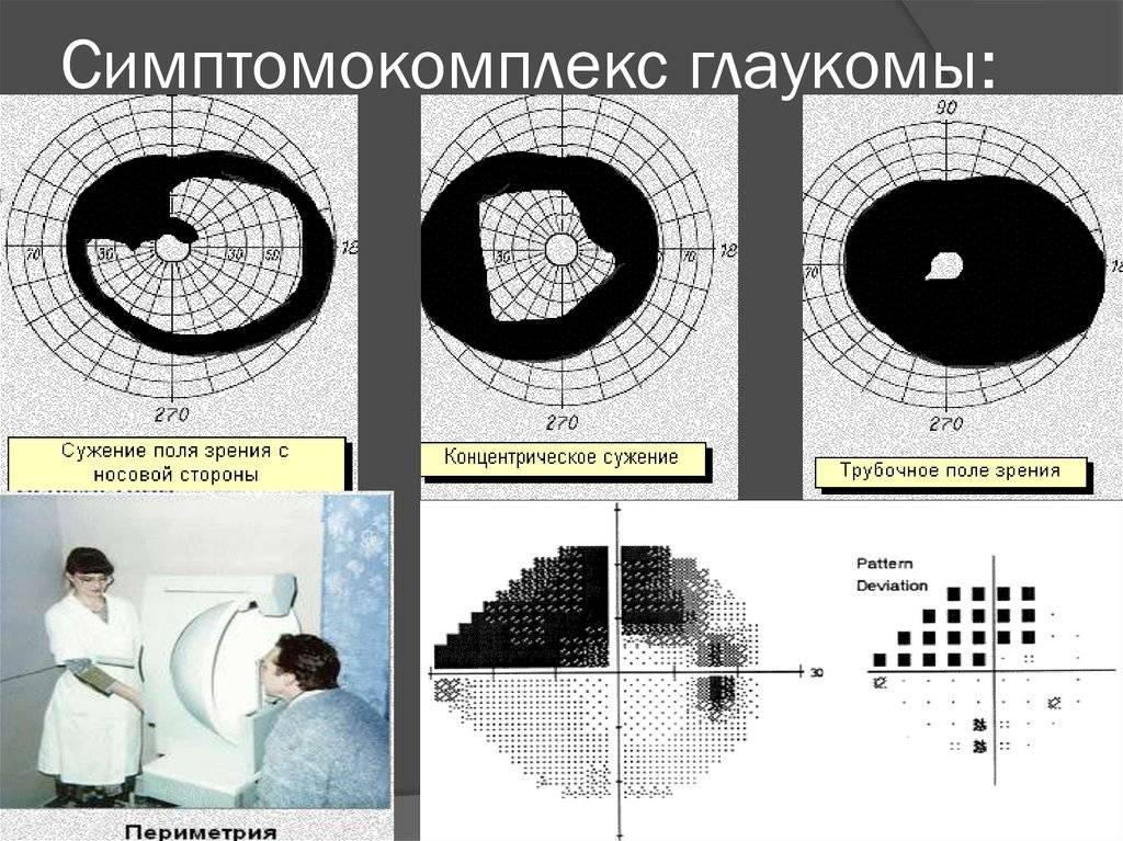 О чем свидетельствует нарушение полей зрения?