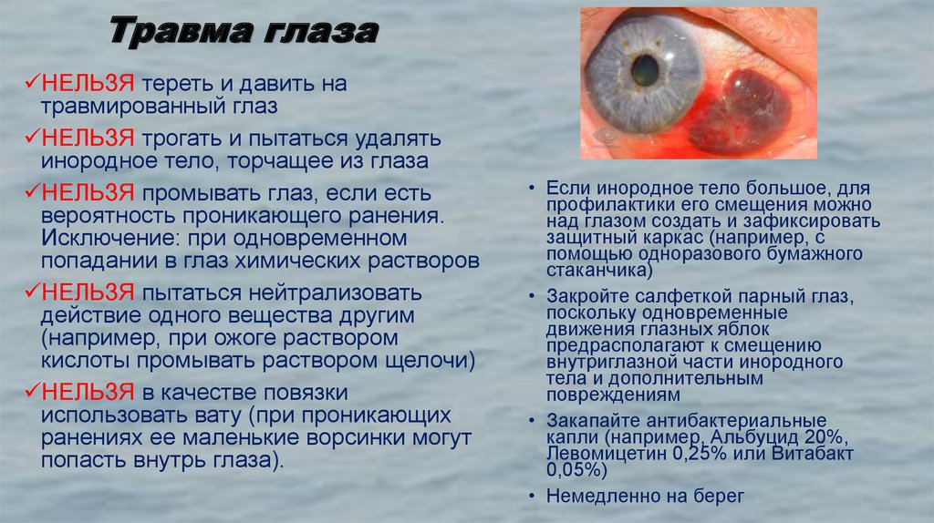 Травмы глаза и оказание первой помощи: как не навредить пострадавшему