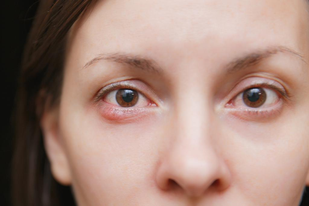 Температура, кашель, красные глаза, сыпь – это корь – диагностер