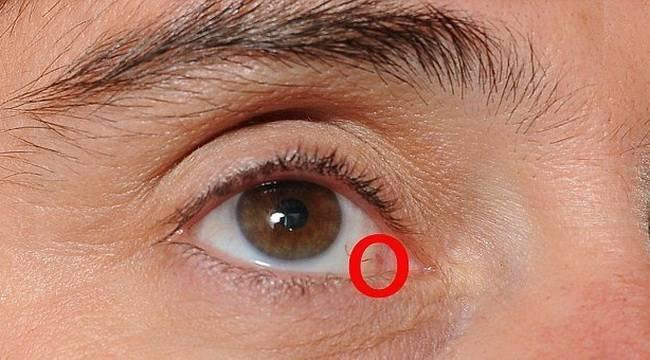Рак глаза - его основные симптомы и причины развития