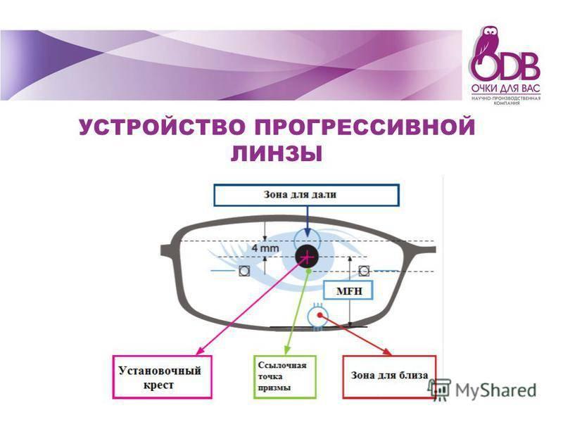 Как привыкнуть к линзам, сколько времени длится адаптация? рекомендации по ношению оптики