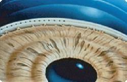 Лечение глаукомы лазером: плюсы и минусы операции