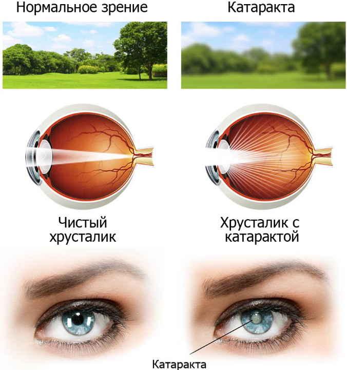 Лечим катаракту быстро в домашних условиях